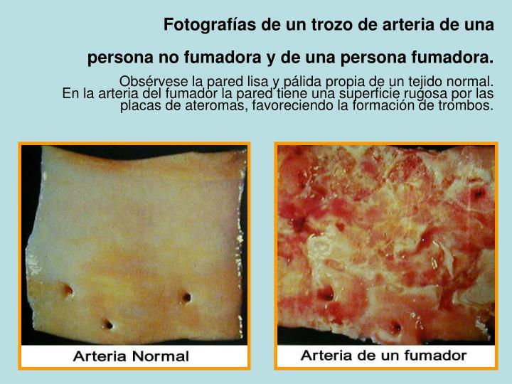Fotografías de un trozo de arteria de una