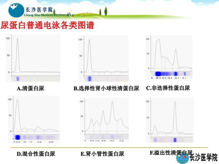 尿蛋白普通电泳各类图谱