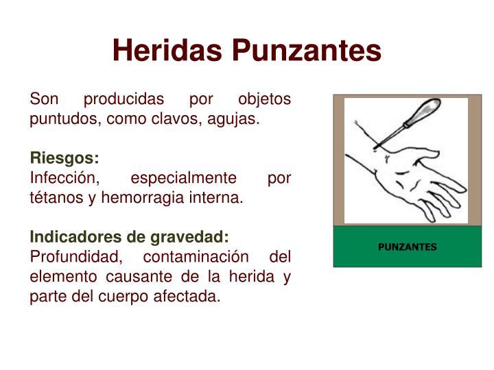 PUNZANTES