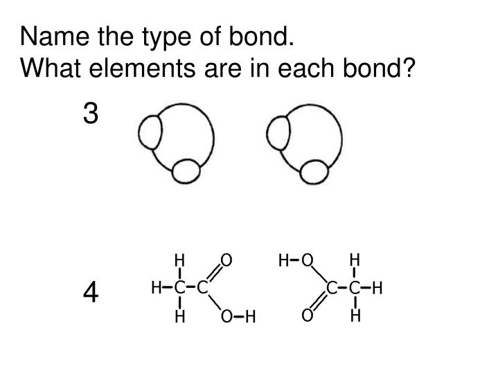 Name the type of bond.