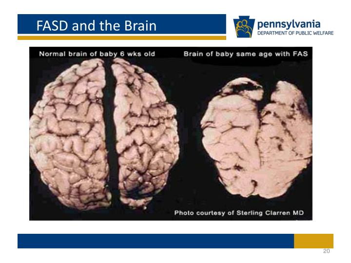 FASD and the Brain