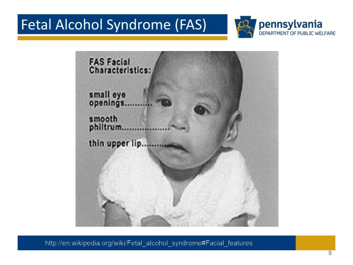 Fetal Alcohol Syndrome (FAS)