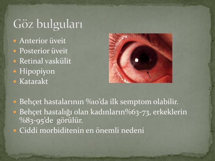 Göz bulguları
