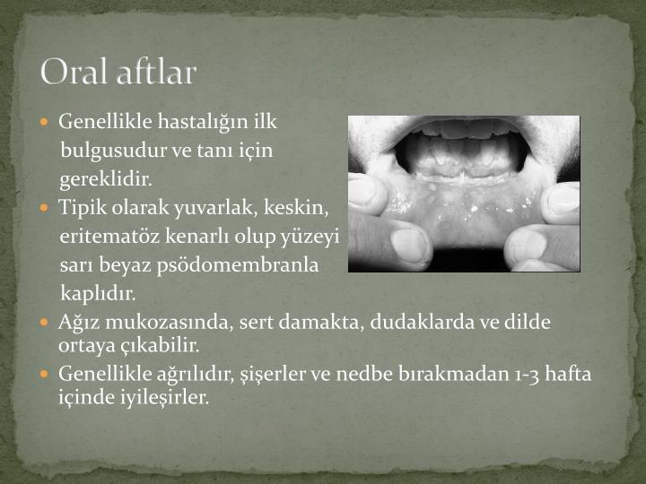 Oral aftlar