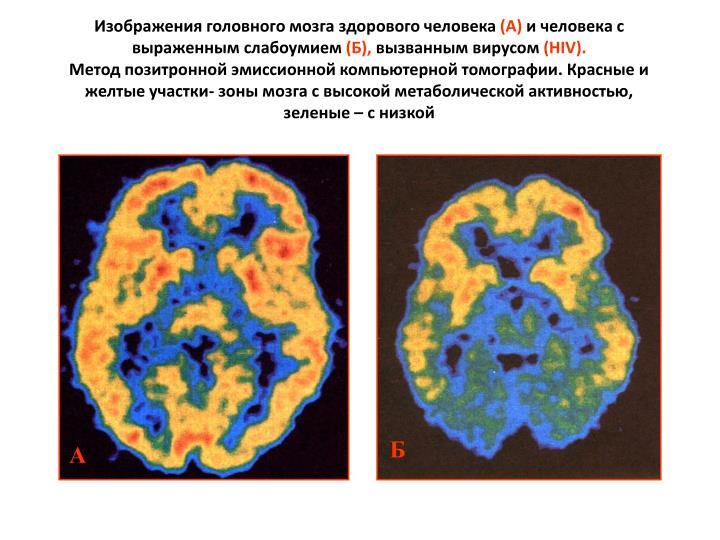 Изображения головного мозга здорового человека