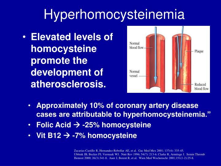 Hyperhomocysteinemia