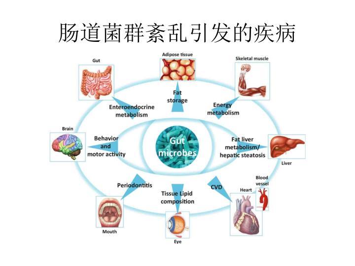 肠道菌群紊乱引发的疾病