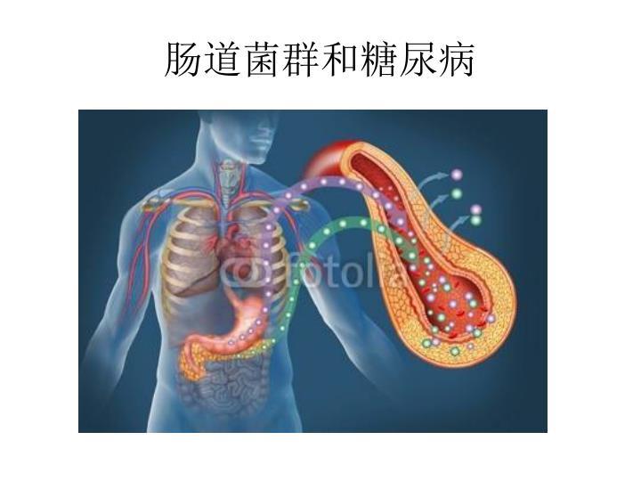 肠道菌群和糖尿病