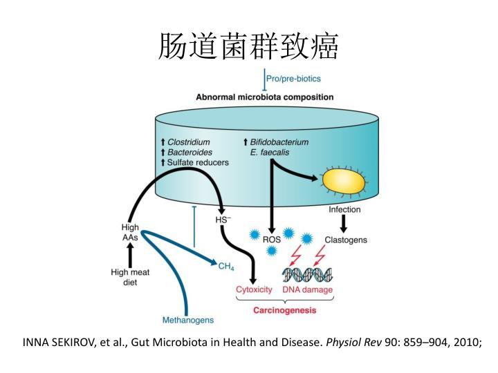 肠道菌群致癌