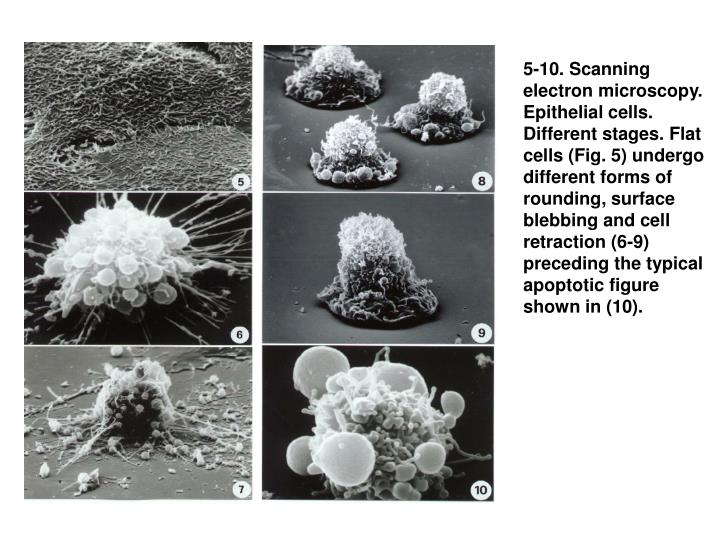 5-10. Scanning electron microscopy. Epithelial cells. Different stages. Flat cells (Fig. 5) undergo different forms of rounding, surface blebbing and cell retraction (6-9) preceding the typical apoptotic figure shown in (10).