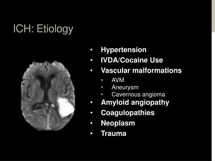 ICH: Etiology