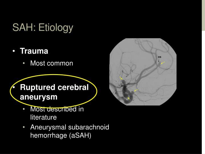 SAH: Etiology