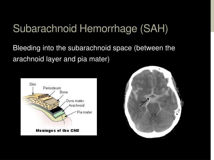 Subarachnoid Hemorrhage (SAH)