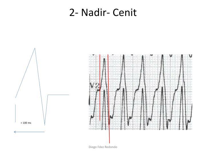 2- Nadir- Cenit