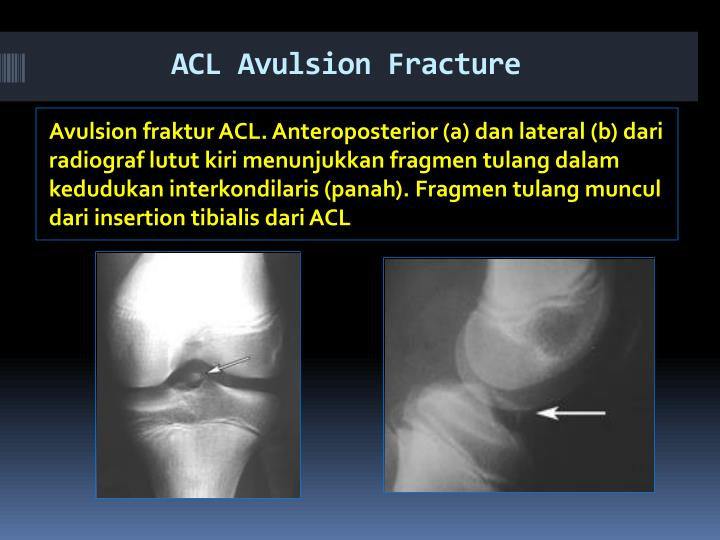 ACL Avulsion Fracture