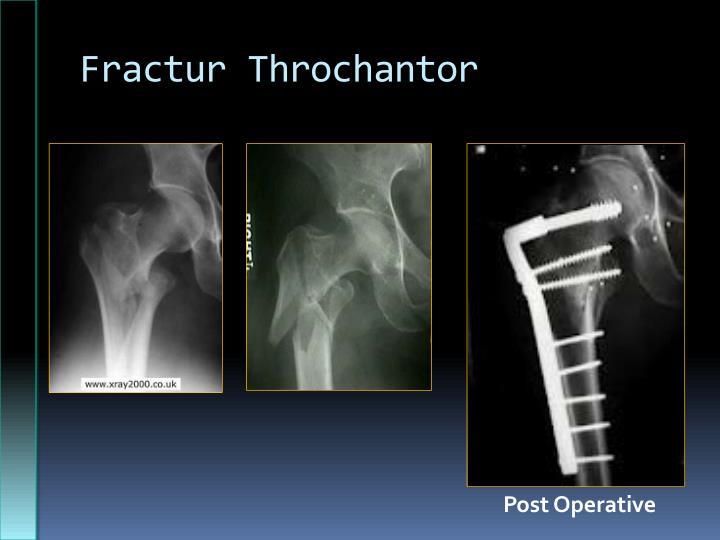 Fractur Throchantor