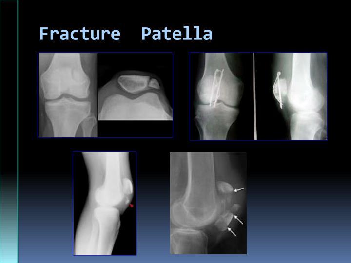 Fracture  Patella