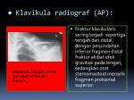 klavikula radiograf ap