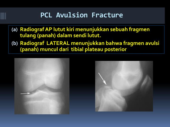 PCL Avulsion Fracture