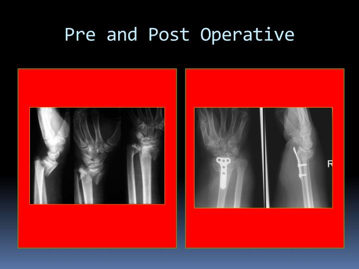 Pre and Post Operative