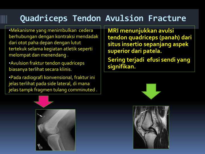 Quadriceps Tendon Avulsion Fracture