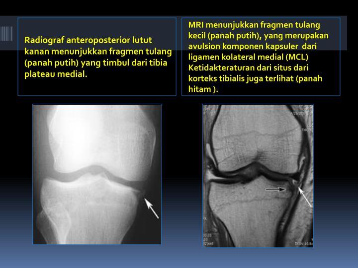 Radiograf anteroposterior lutut kanan menunjukkan fragmen tulang  (panah putih) yang timbul dari tibia plateau medial.