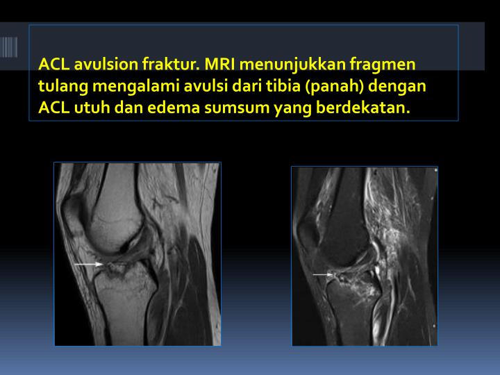 ACL avulsion fraktur. MR