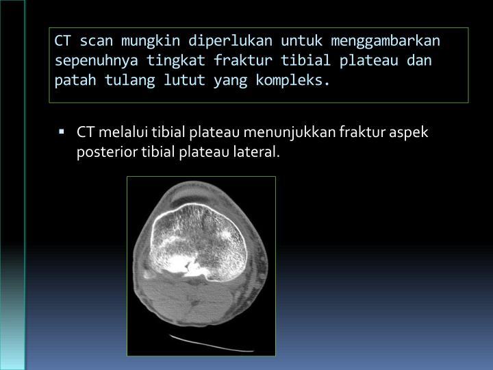 CT scan mungkin diperlukan untuk menggambarkan sepenuhnya tingkat fraktur tibial