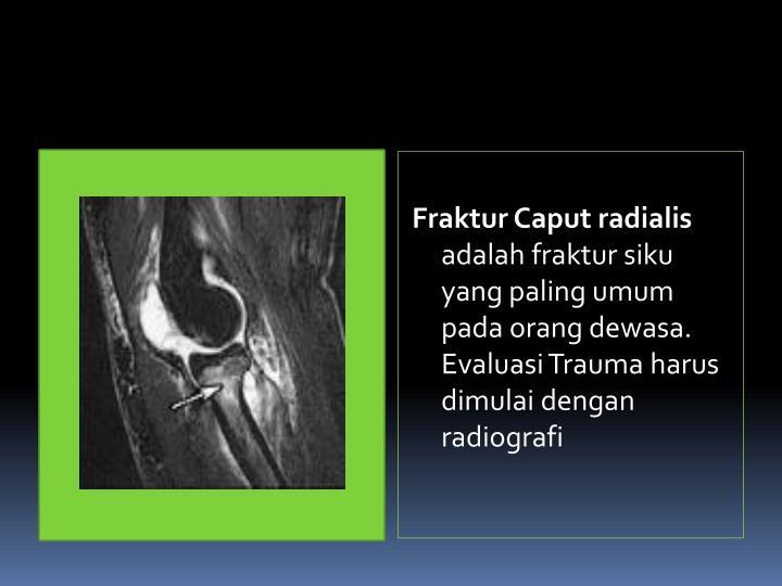 Fraktur Caput radialis