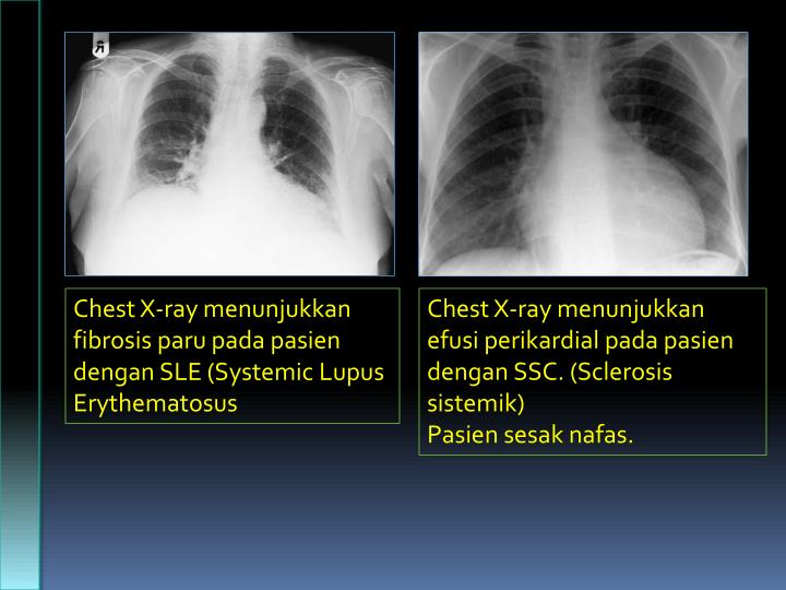 Chest X-ray menunjukkan fibrosis paru pada pasien dengan SLE (Systemic Lupus Erythematosus