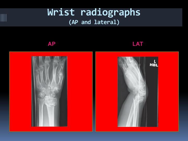 Wrist radiographs