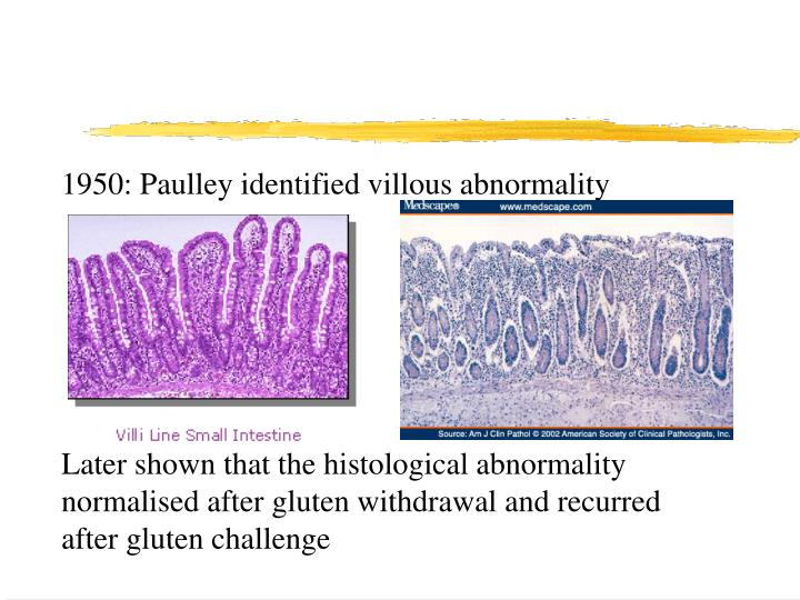 1950: Paulley identified villous abnormality