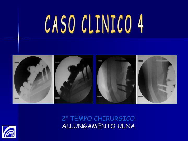 2° TEMPO CHIRURGICO