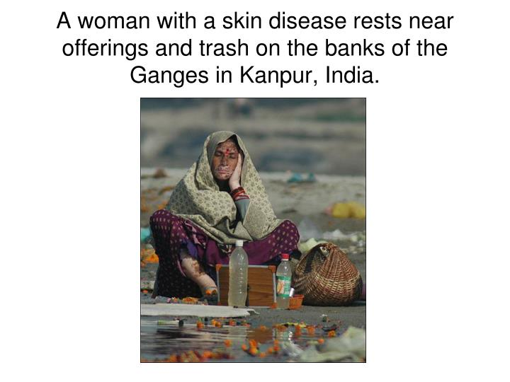 A woman with a skin disease rests near offerings and trash on the banks of the Ganges in Kanpur, India.