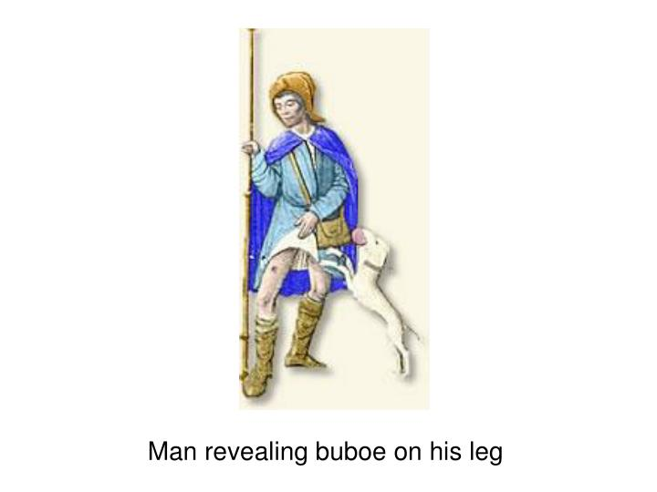 Man revealing buboe on his leg