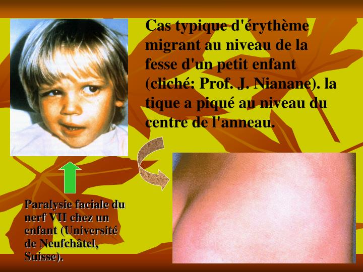 Cas typique d'érythème migrant au niveau de la fesse d'un petit enfant (cliché: Prof. J. Nianane). la tique a piqué au niveau du centre de l'anneau.