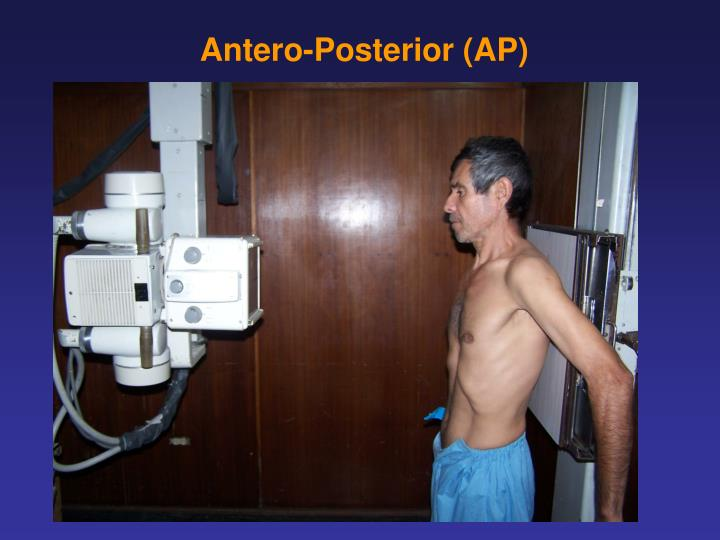 Antero-Posterior (AP)