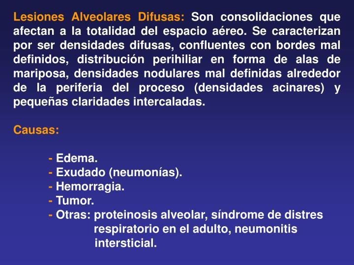 Lesiones Alveolares Difusas:
