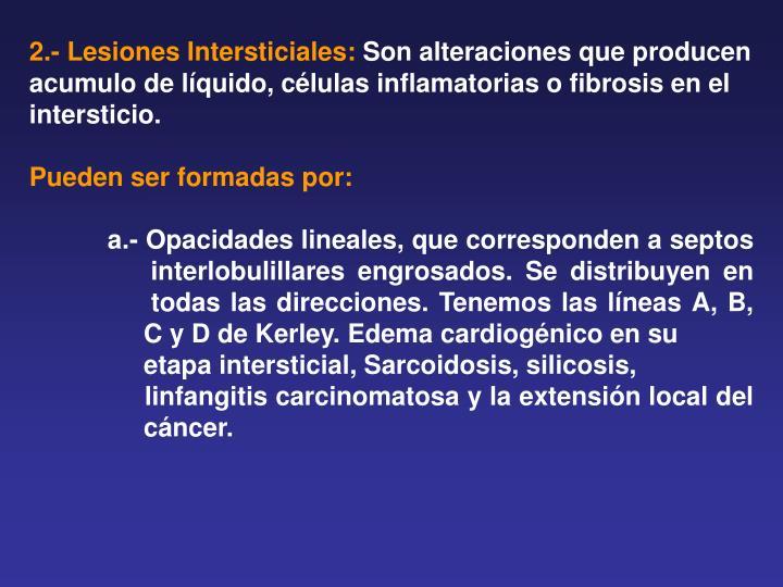 2.- Lesiones Intersticiales: