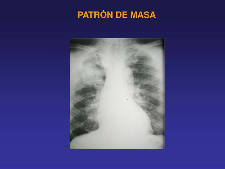 PATRÓN DE MASA