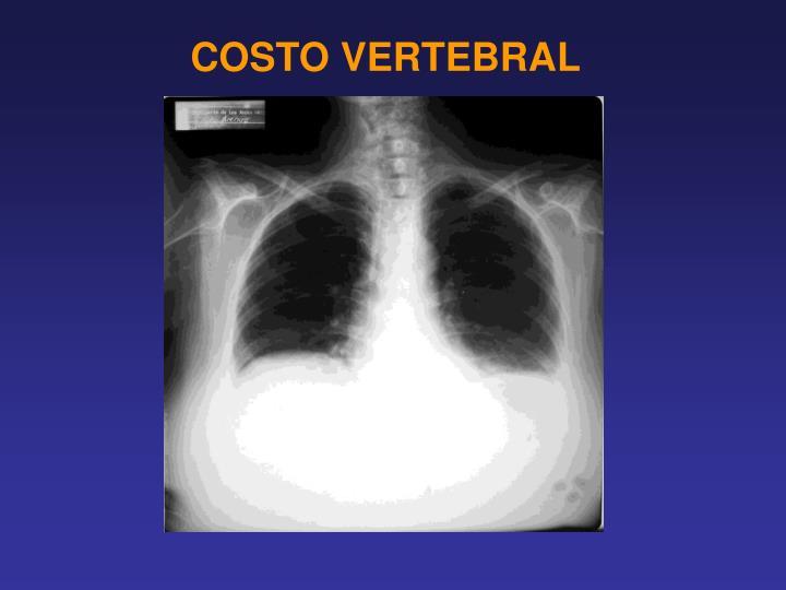 COSTO VERTEBRAL