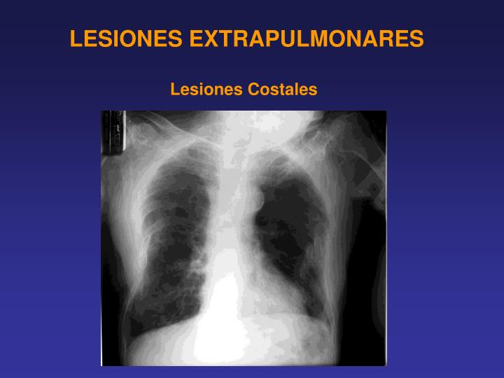 LESIONES EXTRAPULMONARES