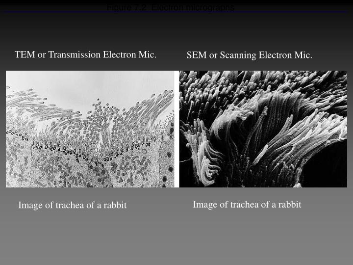 Figure 7 2 electron micrographs