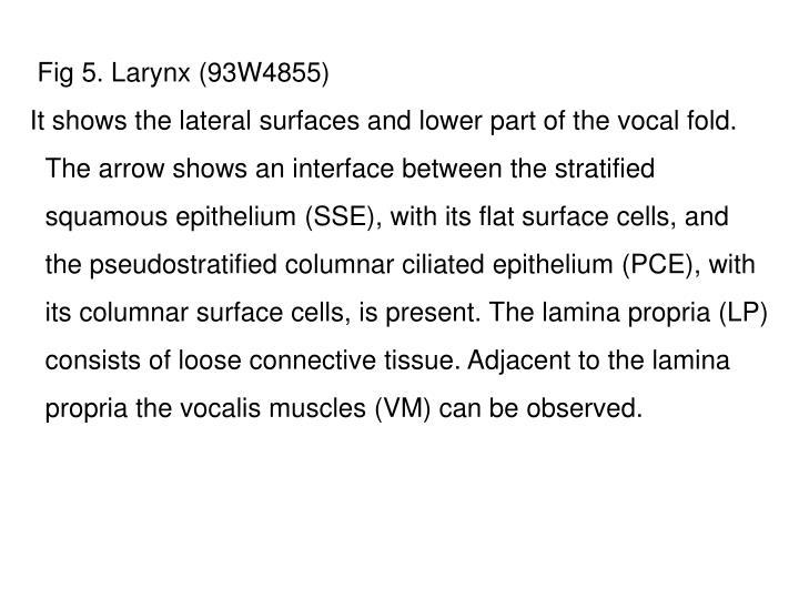 Fig 5. Larynx (93W4855)