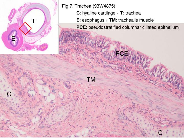 Fig 7. Trachea (93W4875)
