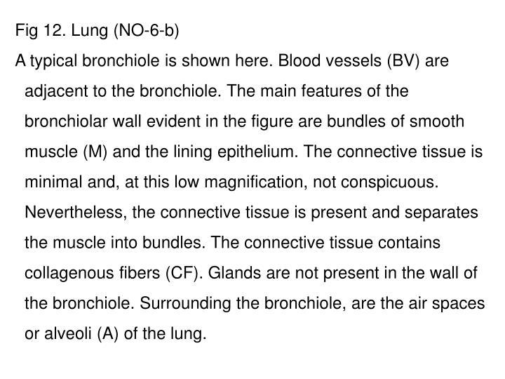 Fig 12. Lung (NO-6-b)
