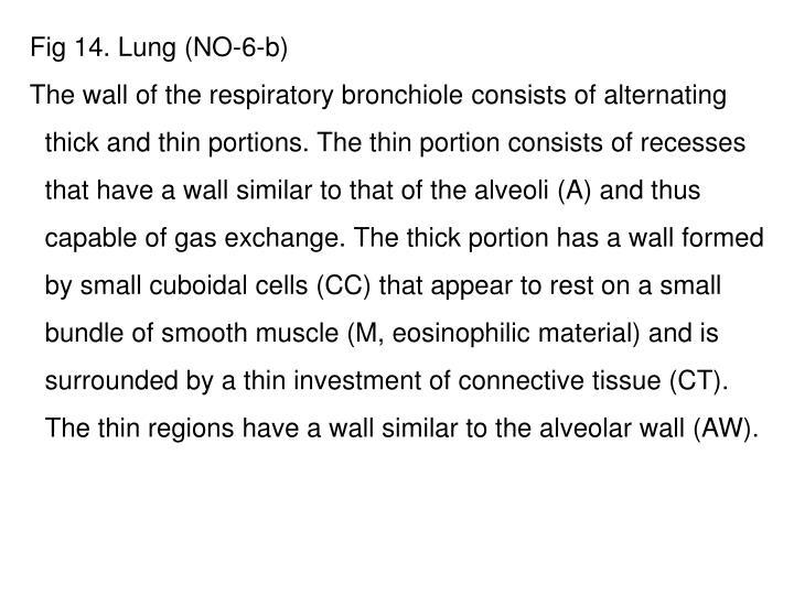 Fig 14. Lung (NO-6-b)