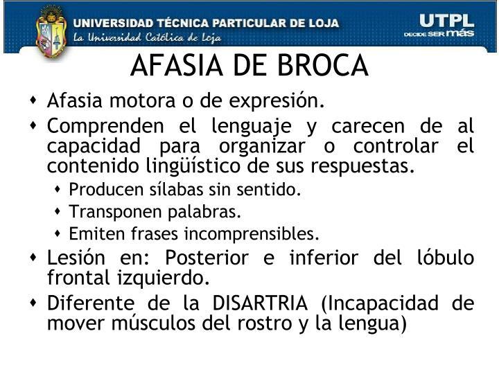 AFASIA DE BROCA