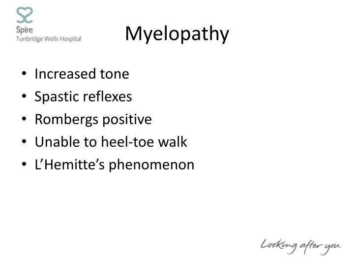 Myelopathy