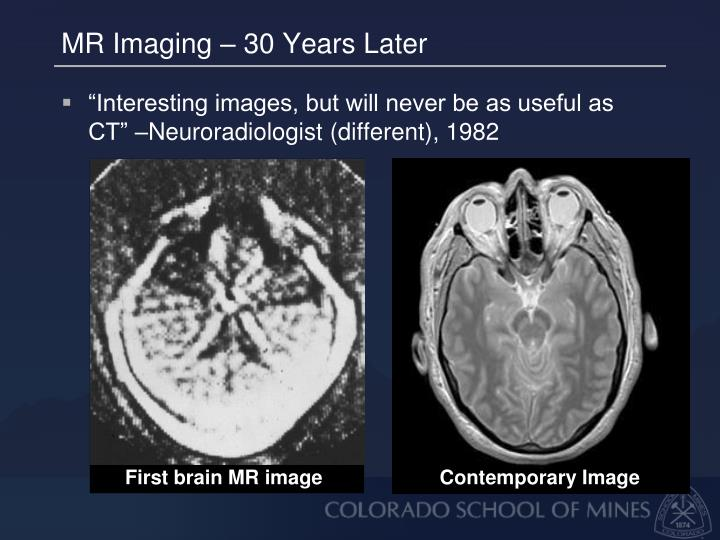 MR Imaging – 30 Years Later